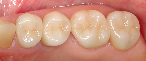 Fig. 2: Baseline study; VITABLOCS posterior crowns on teeth 24 – 27.