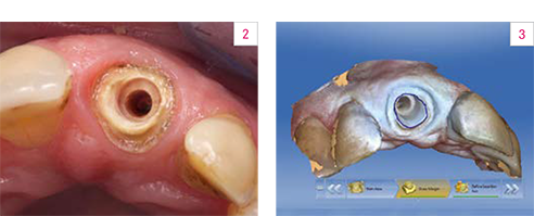 Fig. 2: Preparation for the post abutment fabricated using VITA ENAMIC. Fig. 3: The virtual model.