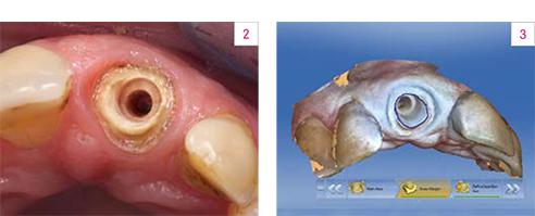 Fig. 2: Preparazione per il perno-moncone in VITA ENAMIC. Fig. 3: Modello virtuale.