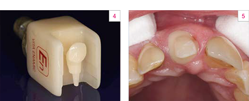 Fig. 4: Milled VITA ENAMIC post abutment. Fig. 5: Bonding is performed adhesively.
