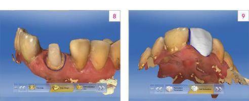 Fig. 8: Modello virtuale – situazione con perno di nuova creazione. Fig. 9: Progettazione della corona.