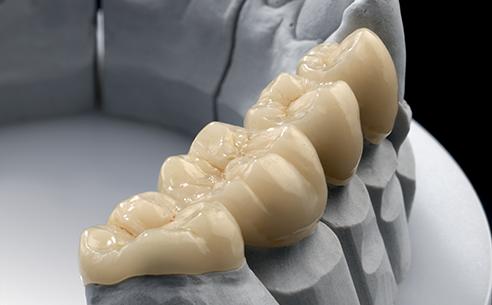 Sample VITA ENAMIC restoration from Werner Hirler, master dental technician