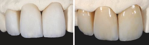 Fig. 1: Blank crowns on model. Fig. 2: Individualized and polished anterior tooth crowns on the model.