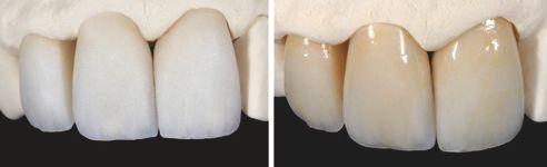 Fig. 1: Corone grezze sul modello. Fig. 2: Corone frontali individualizzate e lucidate sul modello.