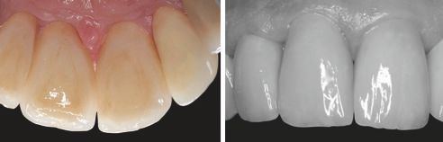 Fig. 3: Perfectly molded and individualized palatinal surfaces of the restorations. Fig. 4: Check of the lightness value of the crowns using a black-and-white image.