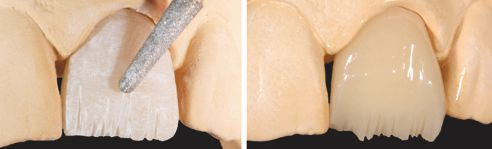 Fig. A: Riduzione di una corona frontale in VITA ENAMIC (tecnica Cut-back) e irruvidimentodella superficie con una diamantata a granulometria fine. Fig B: Corona ridotta e preparata per il rivestimento.