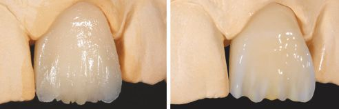Fig. C: Situation after application and polymerization of the enamel effect material EE9. Fig. D: Following application of the effect material EE1 and the VITA VM LC PAINT material PT5 (orange-brown) for optimization of the incisal effects.