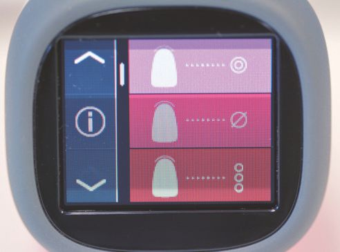 Ill. 1 : Menu principal de l'écran tactile OLED. À l'écran : mesure de la couleur de base, mesure moyenne et mesure d'une zone de la dent.