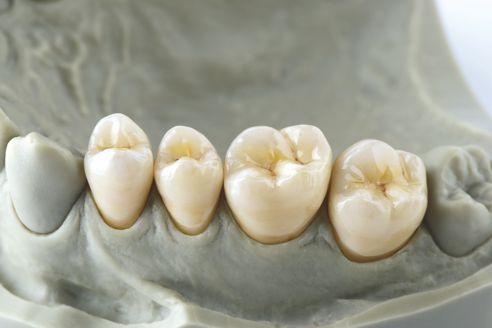 Fig. 9: Restauri caratterizzati e glasati sul modello.
