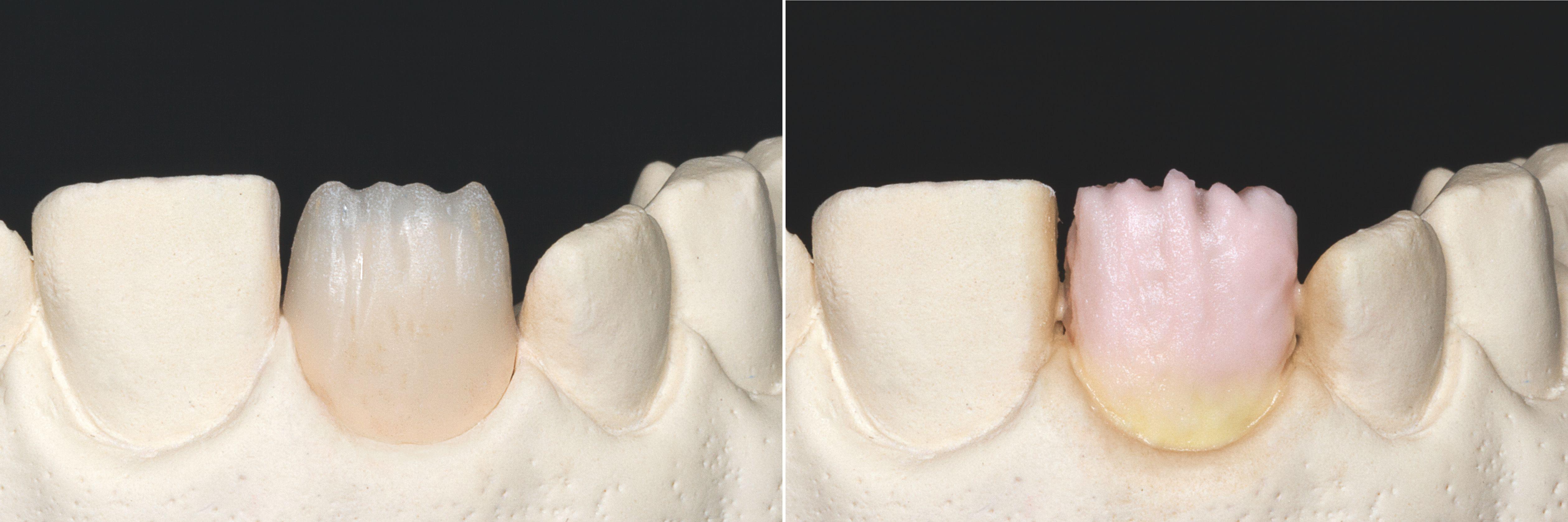 Fig. 1: Corona ridotta a livello incisale. Fig. 2: Completamento della forma del dente: nella zona cervicale VITA VM 11 SUN DENTINE e nel corpo VITA VM 11 TRANSPA DENTINE di idoneo colore.