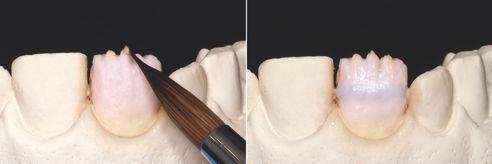 Fig. 3: I mammelloni possono anche essere riprodotti facilmente con una miscela di TD e VITA INTERNO (Int02 centrale / Int09 distale e mesiale). Fig. 4: Il corpo coronale è stato completato con VITA VM 11 EFFECT OPAL (EO) 1 e WINDOW (WIN).