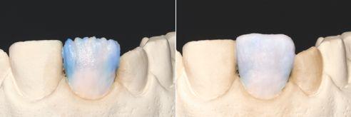 Fig. 5: In area mesiale, distale e leggermente tra i mammelloni è stata applicata una miscela di EO2 e WIN, per realizzare una piacevole alternanza tra masse opalescenti e trasparenti. Fig. 6: Completamento della forma del restauro con una miscela di EO1 & WIN. L'effetto alone è stato ottenuto con una miscela di WIN e TD.