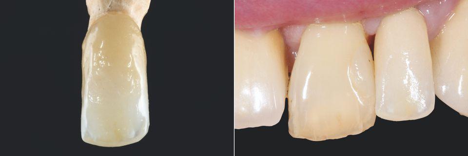 Fig. 7: Risultato dopo la cottura ... Fig. 8: ... e durante la prova in bocca.