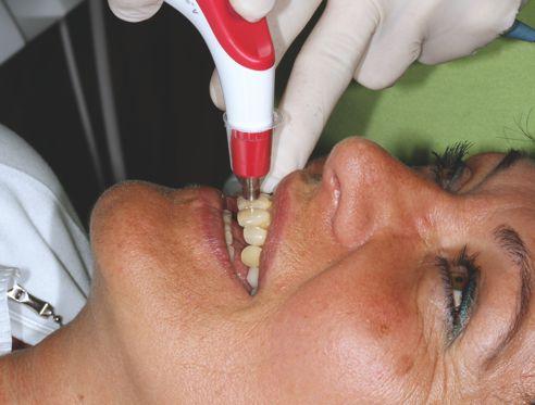 Determinazione del colore con VITA Easyshade V sul paziente.