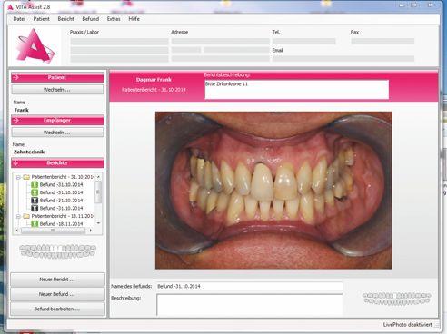 Caso clinico: fotografia della situazione iniziale – il dente 11 deve essere riabilitato ex novo.