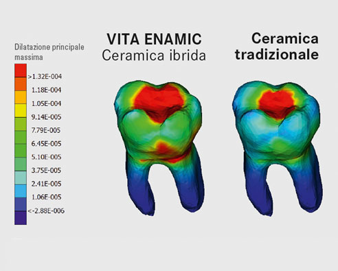 Fig. 3: Modello virtuale di dente in VITA ENAMIC e ceramica.