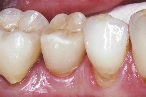 Fig. 9: Risultato dopo l'inserimento della corona implantare in regione 45.