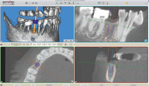 Fig. 2: Progettazione virtuale della posizione implantare.