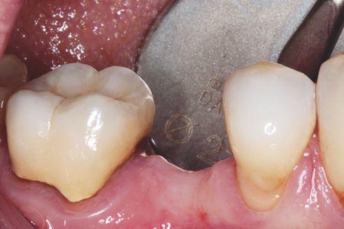 Fig. 1: Situazione iniziale, paziente, 53 anni: lacuna in regione 45 da colmare con terapia implantoprotesica
