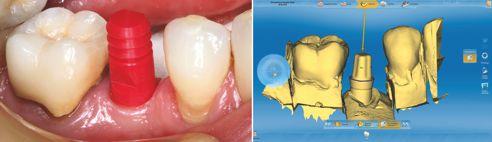 Fig. 5: Rapporti ottimali dei tessuti molli dopo il periodo di guarigione. Segue l'impronta dell'impianto con la cappetta di trasferimento. Fig. 6: Scansione e progettazione CAD della corona per una riabilitazione definitiva.