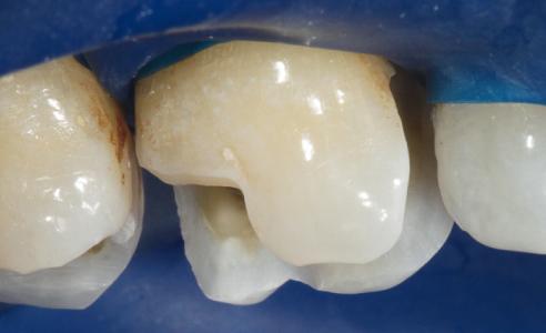 Ill. 3 : Préparation : en cas de support dentinaire insuffisant, une réduction au niveau des cuspides est recommandée.