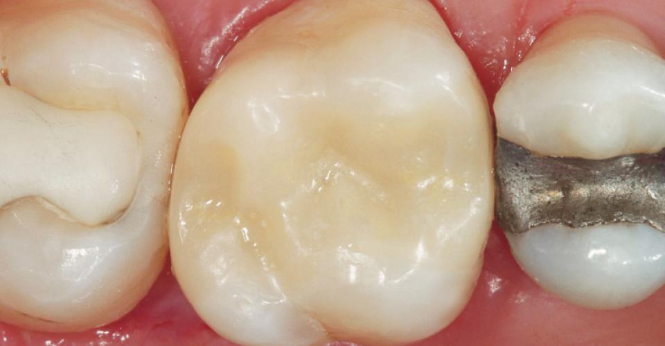 Ill. 7 : Résultat final après le retrait de la digue dentaire : la céramique hybride s'adapte déjà très bien à la substance dentaire naturelle.