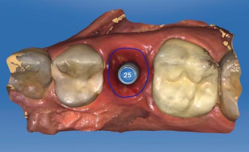 Fig. 2: Per conservare l'architettura dei tessuti molli, la scansione è stata eseguita immediatamente dopo l'eliminazione del provvisorio.