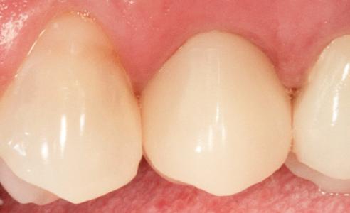Fig. 8: Il risultato finale mostra un'integrazione armoniosa della corona.-abutment in ceramica ibrida nei tessuti molli e rispetto dei denti contigui.