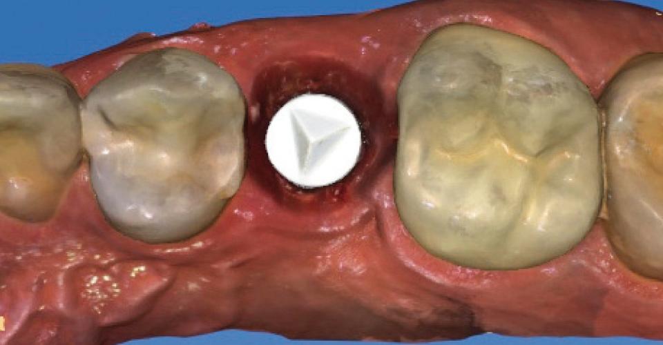 Fig. 5: La posizione implantare è stata rilevata con lo scanner 3-D CEREC Omnicam.