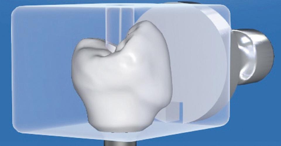 Fig. 6: Progettazione virtuale della corona-abutment per fornire un sostegno ottimale ai tessuti molli.