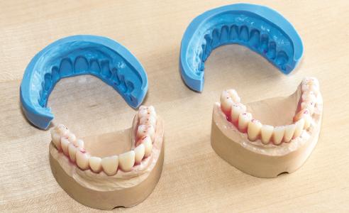 Fig. 3: Le mascherine in silicone riflettono la dimensione del set-up.