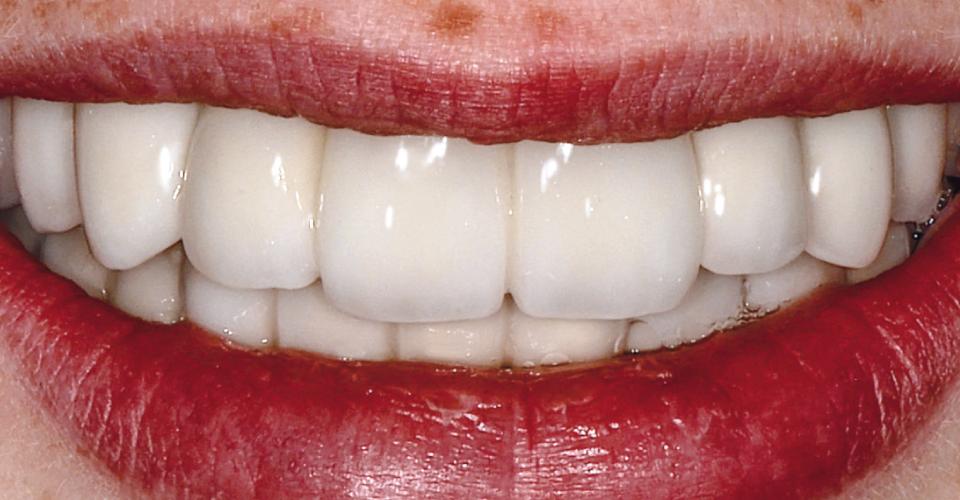 Fig. 11: Un bel sorriso grazie ad una riabilitazione naturale e funzionale per l'età.