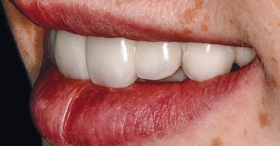 Fig. 12: Estetica rossa e bianca in equilibrata armonia.