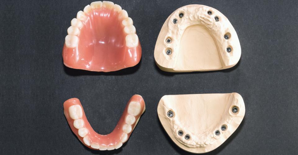 Fig. 1: Modelli maestro con pilastri implantari e protesi immediate.