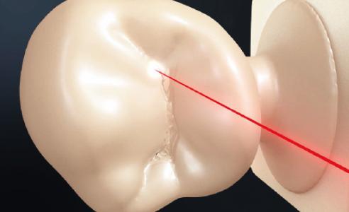 Fig. 3: Il sottile raggio laser consente restauri precisi nel dettaglio.
