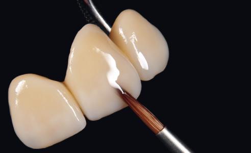 Fig. 6: Modellazione della forma finale del dente con masse smalto.
