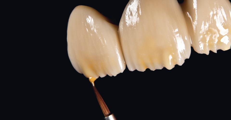 Fig. 4: Sul corpo dentinale ridotto con i supercolori e flow CHROMA PLUS si applicano mammelloni e si intensifica il bordo incisale.