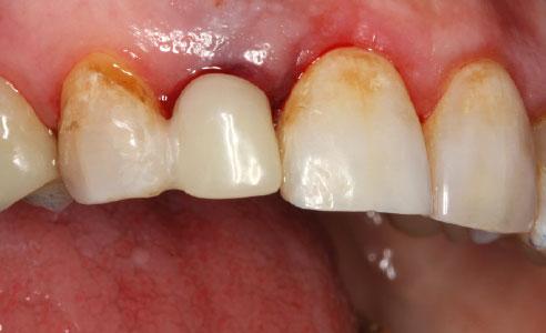 Ill. 3 : Couronne provisoire collée par adhésif sur la dentvoisine pour la mise en forme et la stabilisation des tissus mous.