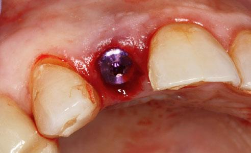Abb. 5: Ein Implantat wurde schablonengeführt inseriert und ein Gingivaformer aufgeschraubt.
