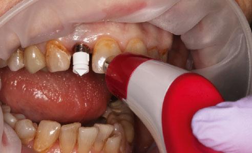 Abb. 7: Ein Scanbody wurde auf das Implantat geschraubt und die Zahnfarbe digital mit dem VITA Easyshade V bestimmt.