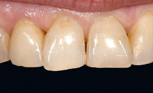 Ill. 6 : Résultat : La couronne a été polie et insérée définitivement. La restauration s'est harmonisée avec la substance des dents restantes.
