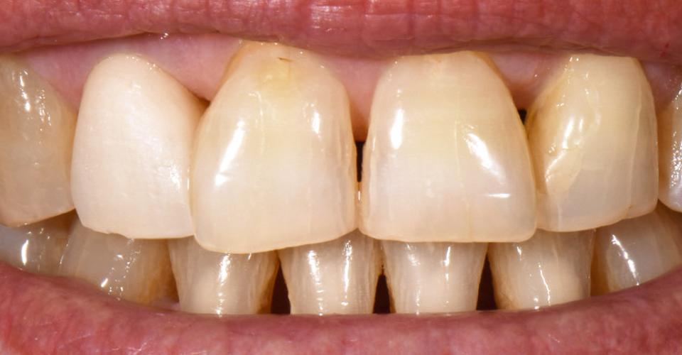 Ill. 3 : L'essayage réalisé après la première cuisson de dentine montre encore une couronne beaucoup trop claire.
