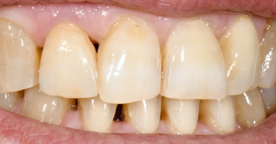 Ill 5 : Après la cuisson des colorants, la patiente tout comme le dentiste étaient satisfaits du résultat.
