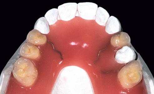 Abb. 4: Die fertige Interimsprothese mit gebogenen Klammern an den Zähnen 13, 23 und 25.