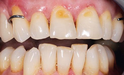 Abb. 6: Zahnfarbe und Morphologie harmonierten mit der Restbezahnung.