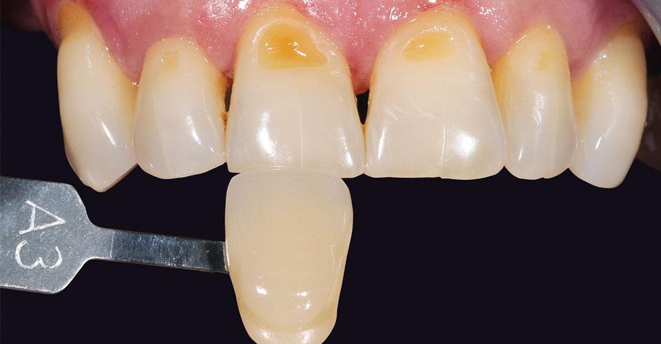 Abb. 3: Gemessener Zahn und Farbmusterstäbchen in der vom VITA Easyshade V bestimmten Farbe.