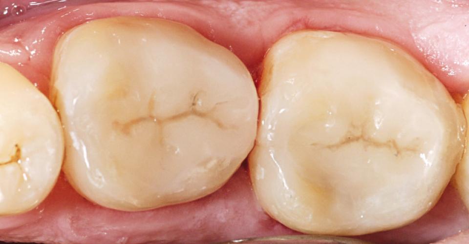 Abb. 10: Dank des hervorragenden Chamäleoneffekts verschmolzen die hybridkeramischen Inlays optisch mit der Zahnhartsubstanz.