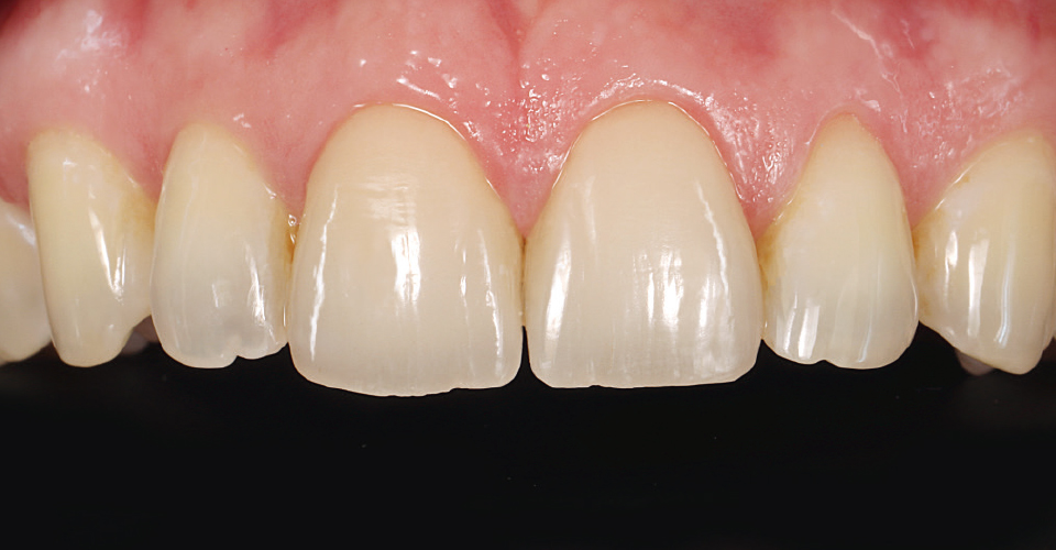 Fig. 15: Both veneers integrated completely and naturally into the esthetic zone.
