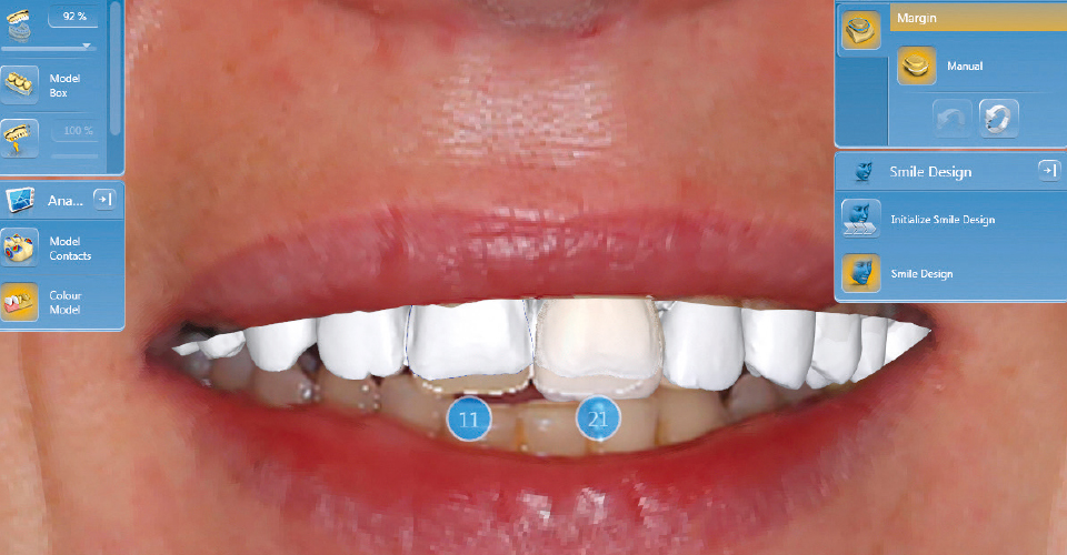 Fig. 8: With the CEREC-Smile Design Application, the restorations can be evaluated together with the lips.