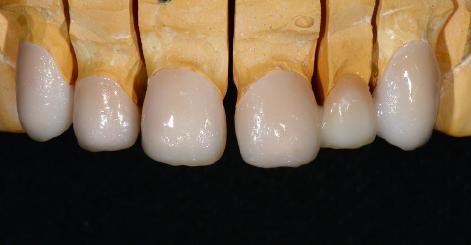 Abb. 3: Gerüstkonstruktionen aus Zirkondioxid nach dem Washbrand mit EL4 (gelb), Int02 (sand) und 05 (terracotta).
